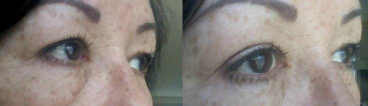 easylift oogstickers telsell voor en na