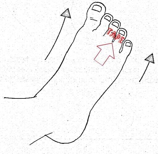 voeten met tape