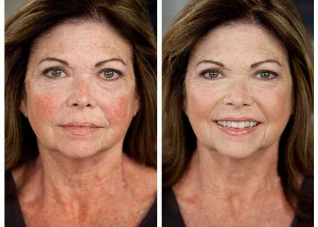 Colorescience make over woman age spot visible redness mixed skin