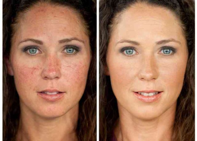 Colorescience make over woman rosacea - couperose fair skin 1