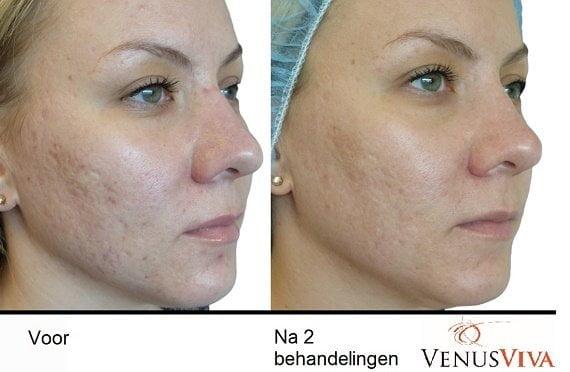 Pigmentatie, rosacea en acne littekens corrigeren met Venus Viva 11 acne littekens Pigmentatie, rosacea en acne littekens corrigeren met Venus Viva Medisch cosmetische behandelingen