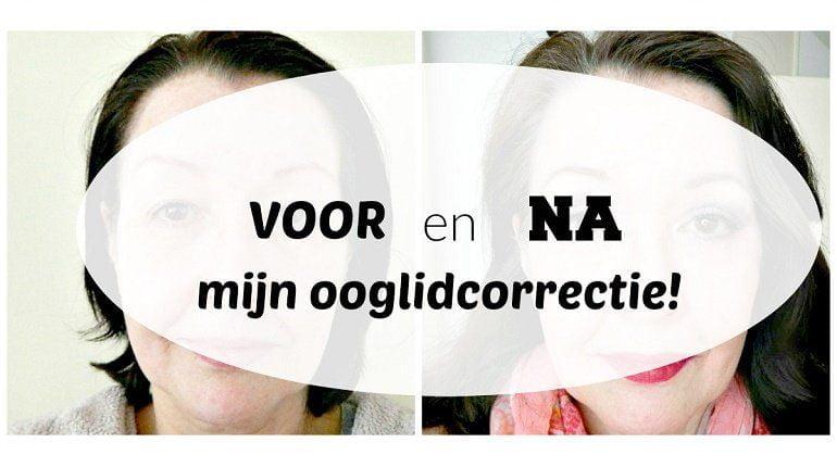 collage voor na met makeup na ooglidcorrectie 2