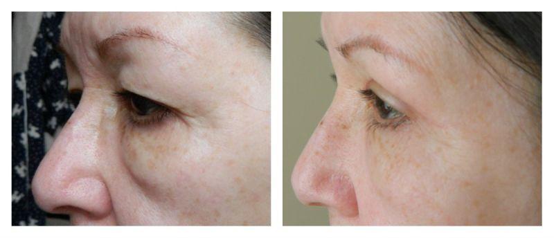 collage voor en na ooglidcorrectie zijkant