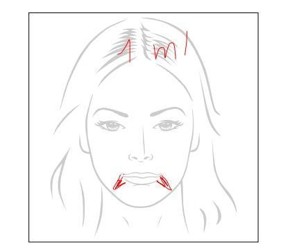Ik won een Full Face Botox behandeling! Maar... kreeg ik Botox? 7 fillers ervaring Ik won een Full Face Botox behandeling! Maar... kreeg ik Botox?